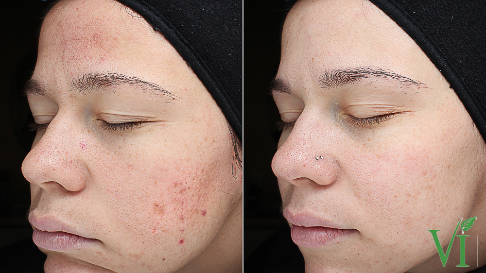 Before and after VI Peel results for acne