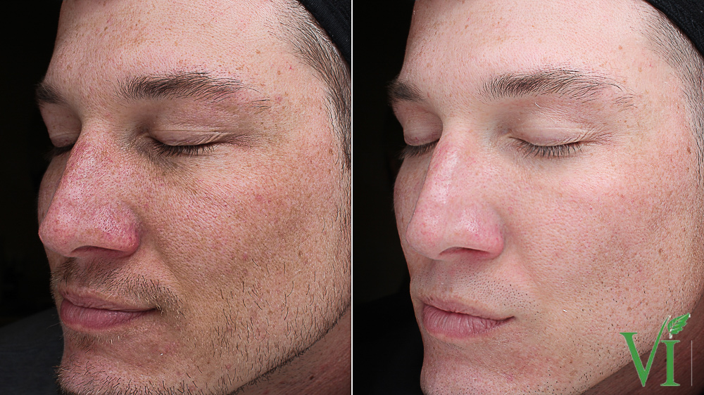 Before and after VI Peel results for pigmentation