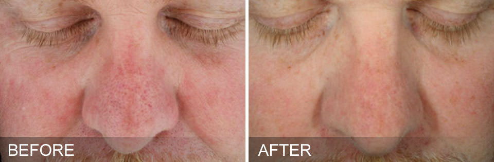 Before and after HydraFacial treatments