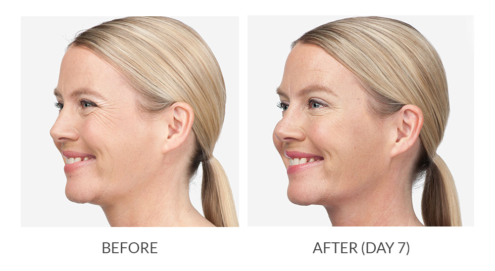 Before and after Botox Cosmetic results