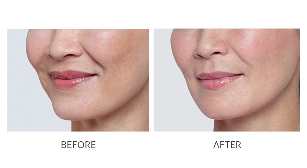 Before and after Restylane results