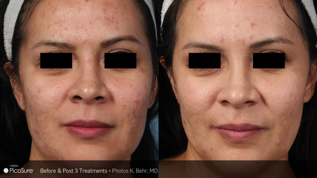 Before and after PicoSure results