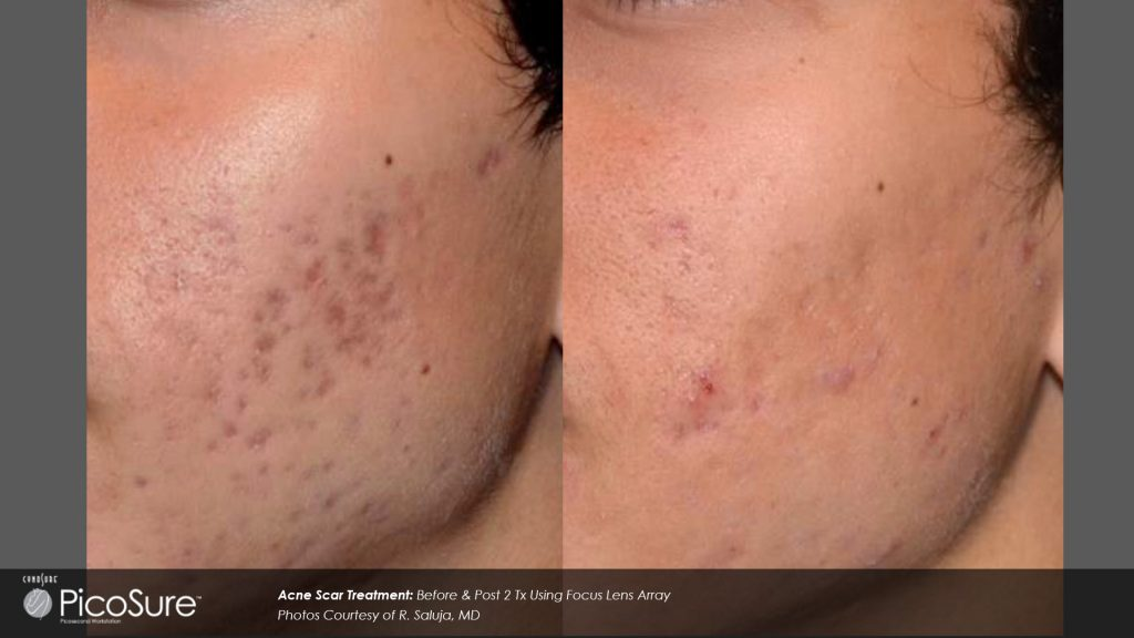 Before and after results for PIcoSure
